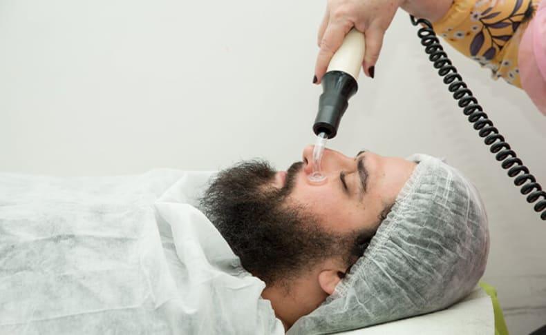 הסרת שיער באפילציה